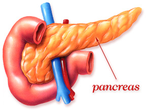 Early Pancreatic Cancer